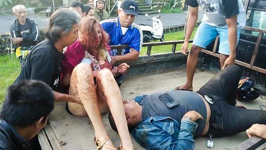 http 2F2Fcdn.cnn.com2Fcnnnext2Fdam2Fassets2F180905151354 bali accident 1