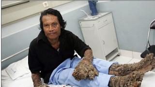 Ινδονησία: Πέθανε ο «άνθρωπος-δέντρο»