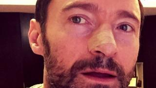 Χιου Τζάκμαν: Mε ένα selfie στο Instagram, ο Wolverine πολεμάει τον καρκίνο