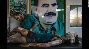 """IS Fighter Treated at Kurdish Hospital"" (Μαχητής του Iσλαμικού Κράτου σε Κουρδικό νοσοκομείο) από τον Mauricio Lima. Ένας γιατρός βάζει αλοιφή στα εγκαύματα ενός 16-χρονου μέλους του ISIS ονόματι Jacob, σε ένα νοσοκομείο έξω απο τη Χασάκα της Συρίας, την"