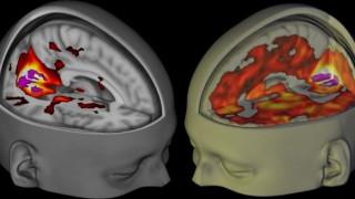 Πώς το μυαλό «διαβάζει» τις λέξεις