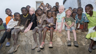 Κυνηγώντας ανθρώπους: Αλμπίνοι δολοφονούνται για τα κόκκαλα τους
