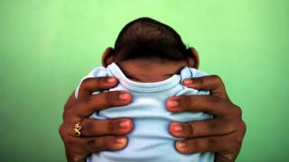 Ιός Ζίκα: 1.581 περιστατικά μικροκεφαλίας στη Βραζιλία