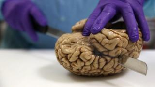 Νέα έρευνα συνδέει τους εγκεφαλικούς όγκους με την ακαδημαϊκή εκπαίδευση