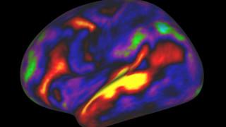 Πρόσφυγες: στο «μικροσκόπιο» ο εγκέφαλος τους