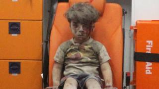 Το μήνυμα ενός γιατρού από το Χαλέπι: Ο Ομράν είναι ένα τυχερό παιδί