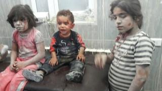 Χαλέπι: Ματωμένο παιδί δεν φεύγει από την αγκαλιά του νοσοκόμου του