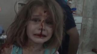 Ακόμη ένα παιδί θύμα του πολέμου στη Συρία: Η 8χρονη με τα γαλάζια μάτια και το ματωμένο πρόσωπο