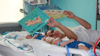 Επιτυχής διαχωρισμός δύο σιαμαίων μωρών που χωρίστηκαν μετά από 13 μήνες