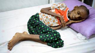 Το τραγικό πρόσωπο του εμφυλίου: Τα παιδιά στην Υεμένη πεθαίνουν απ'την πείνα