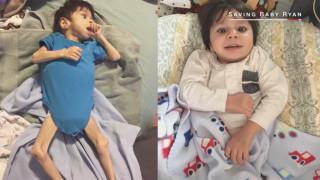 Ήταν 7 χρόνων και 3,5 κιλά – Και η αγάπη τον μεταμόρφωσε!