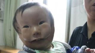 Η συγκινητική ιστορία του «παιδιού-μάσκα» (vid)