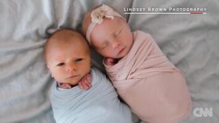 Φωτογράφος απαθανατίζει τις τελευταίες στιγμές ενός νεογέννητου