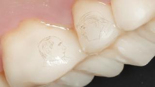 Νέο trend στη Ρωσία: Οι Πούτιν-Τραμπ τώρα και σε δόντια