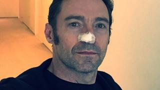 O Wolverine συνεχίζει την πάλη του με τον καρκίνο