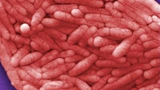 Τα 12 βακτήρια που είναι η μεγαλύτερη απειλή για την υγεία των ανθρώπων