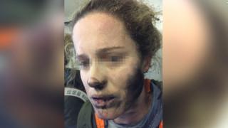 Πήραν φωτιά τα ακουστικά της εν μέσω πτήσης και της έκαψαν το πρόσωπο (pics)