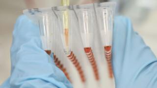 Γονίδιο γερνάει απότομα τον εγκέφαλο μετά τα 65