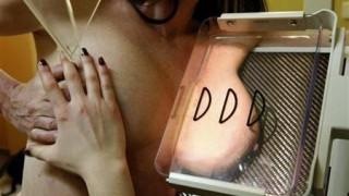 Σπάνια μορφή καρκίνου σχετίζεται με τα εμφυτεύματα στήθους