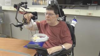 Ιατρικό «θαύμα»: Τετραπληγικός κινεί τα χέρια του και τρώει ξανά μόνος του