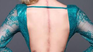 Τα σημάδια της η ομορφιά της: 22χρονο μοντέλο σπάει στερεότυπα