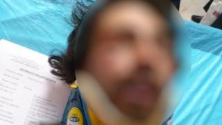 Άγριος ξυλοδαρμός νεαρού στους Αμπελόκηπους - Τι εξετάζει η Ασφάλεια