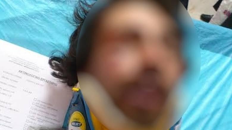 Με κακώσεις στο κεφάλι νοσηλεύεται ο 22χρονος-θύμα ξυλοδαρμού στους Αμπελόκηπους
