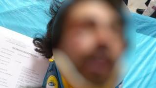 Συνελήφθη ύποπτος για τον ξυλοδαρμό φοιτητή στους Αμπελόκηπους