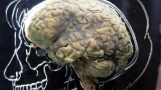 Νέα ανακάλυψη ανατρέπει όσα ξέραμε για τον εγκέφαλο