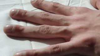 Πειραματική θεραπεία για την κυστική ίνωση