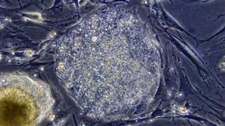 Βρέθηκαν απολιθώματα 2,4 δισεκατομμυρίων χρόνων παρόμοια με μύκητες