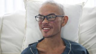 Επέζησε μετά από 47 μέρες εξαφάνισης στα Ιμαλάια, όμως έχασε για πάντα την κοπέλα του (pics)