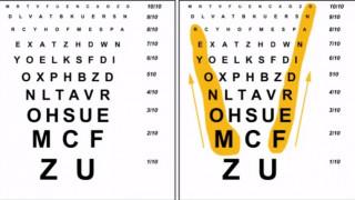 Ferdinand Monoyer: Κάντε το τεστ όρασης