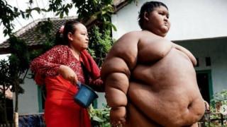 Το πιο παχύσαρκο παιδί ζύγιζε 192 κιλά και υποβλήθηκε σε επέμβαση για να αδυνατίσει