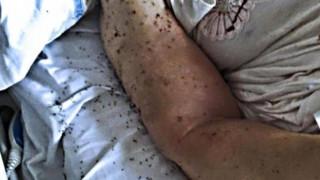 Ηλικιωμένη γυναίκα εγκαταλείφθηκε σε νοσοκομείο στη Νάπολη γεμάτη μυρμήγκια (pic)