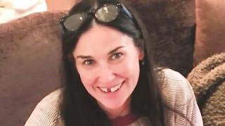 Η Demi Moore έχασε τα μπροστινά της δόντια και μας προειδοποιεί γιατί