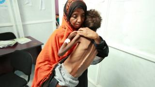 Τα παιδιά στην Υεμένη πεθαίνουν από πείνα