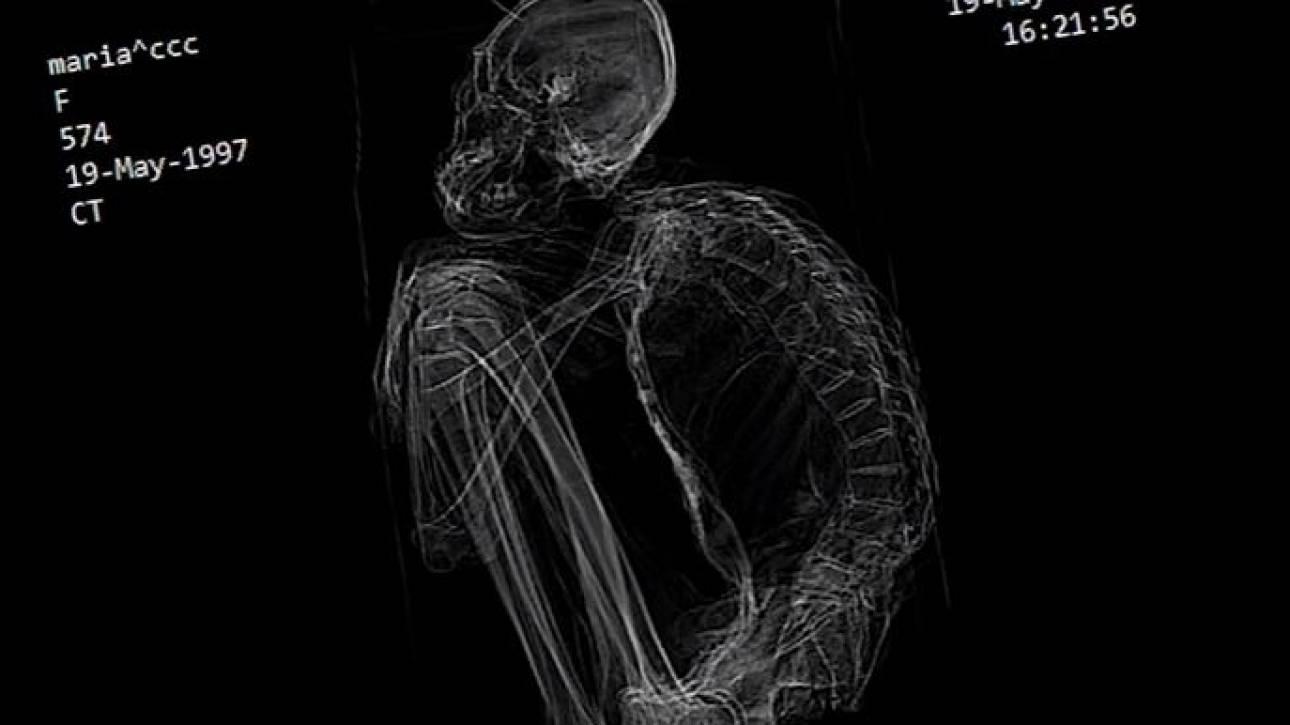Περού: Βρέθηκε «εξωγήινη» μούμια με τρία δάκτυλα (vid)