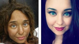 25χρονη επιβίωσε για ένα μήνα ολομόναχη σε αχανές δάσος - Πώς κατάφερε να σωθεί (pics+vid)
