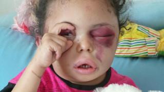 Το κοριτσάκι που προσπαθεί να «ανοίξει τα μάτια» της διεθνούς κοινότητας για την Υεμένη