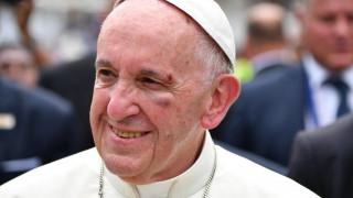 Ατύχημα είχε ο Πάπας Φραγκίσκος – Χτύπησε το κεφάλι του (pics)