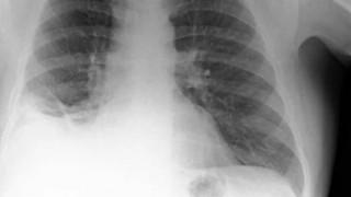 Οι γιατροί νόμιζαν ότι είχε καρκίνο, αλλά ο όγκος ήταν ένας πλαστικός κώνος Playmobil (Pics)