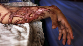 «Βασανιστήριο σε μπουκάλι»: Οι επιθέσεις με οξύ τρομοκρατούν το Λονδίνο