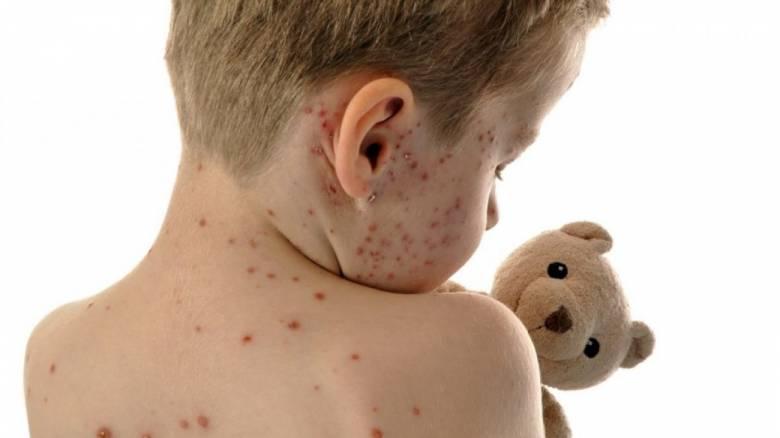 Ιλαρά: Δύο παιδιά στη ΜΕΘ - Συνεδριάζει για την επιδημία η επιτροπή κοινωνικών υποθέσεων