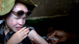 Ιλαρά: οδηγίες προς γονείς- τα συμπτώματα και οι επιπλοκές της νόσου