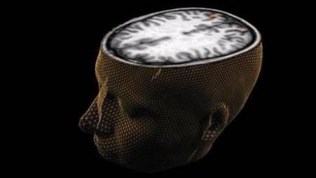 Σχιζοφρένεια: Πώς επηρεάζει όλο το σύστημα επικοινωνιών του εγκεφάλου