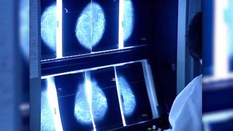 72 νέες μεταλλάξεις συνδέονται με τον καρκίνο του μαστού