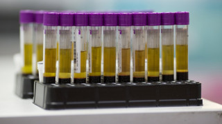 Τεστ αίματος που ανιχνεύει 8 είδη καρκίνου ανέπτυξαν επιστήμονες, με επικεφαλής έναν Έλληνα