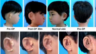 Επιστήμονες δημιουργούν νέα αυτιά για παιδιά με δυσμορφία