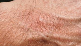 Μυστηριώδης έξαρση στην Αυστραλία: Η ασθένεια που «τρώει» τη σάρκα